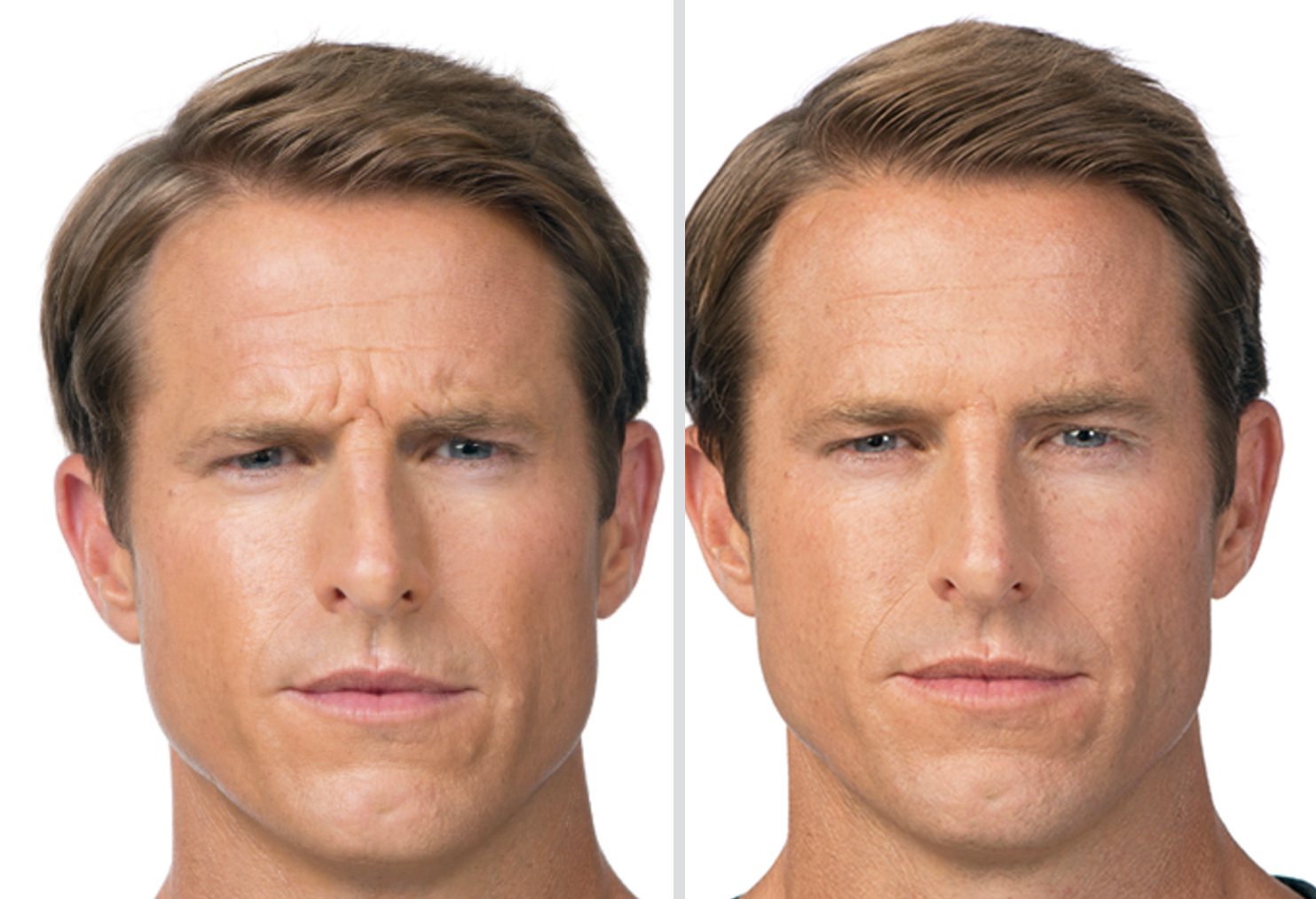 Botox for Men in Frederick Maryland