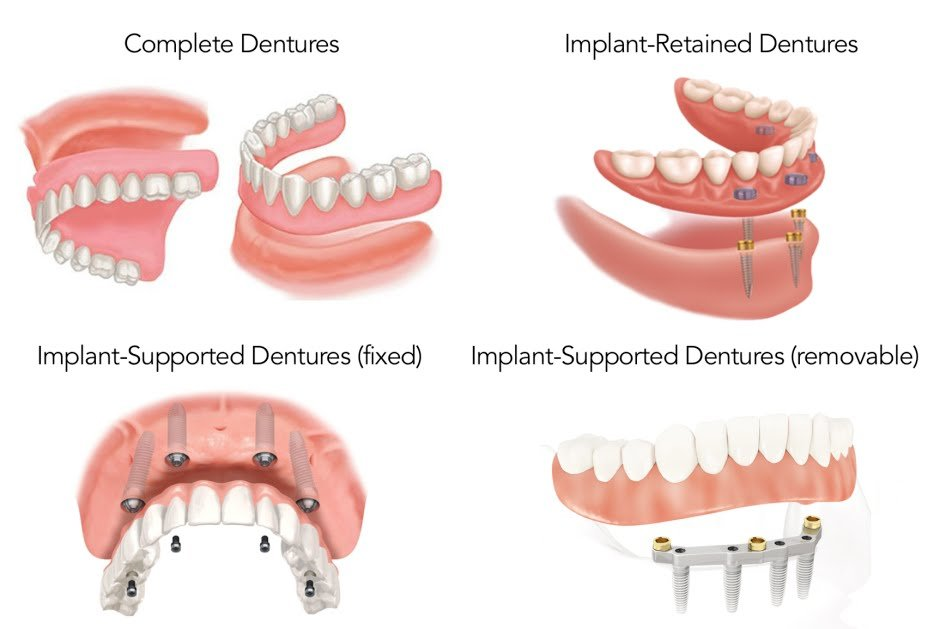 Image result for implant denture options