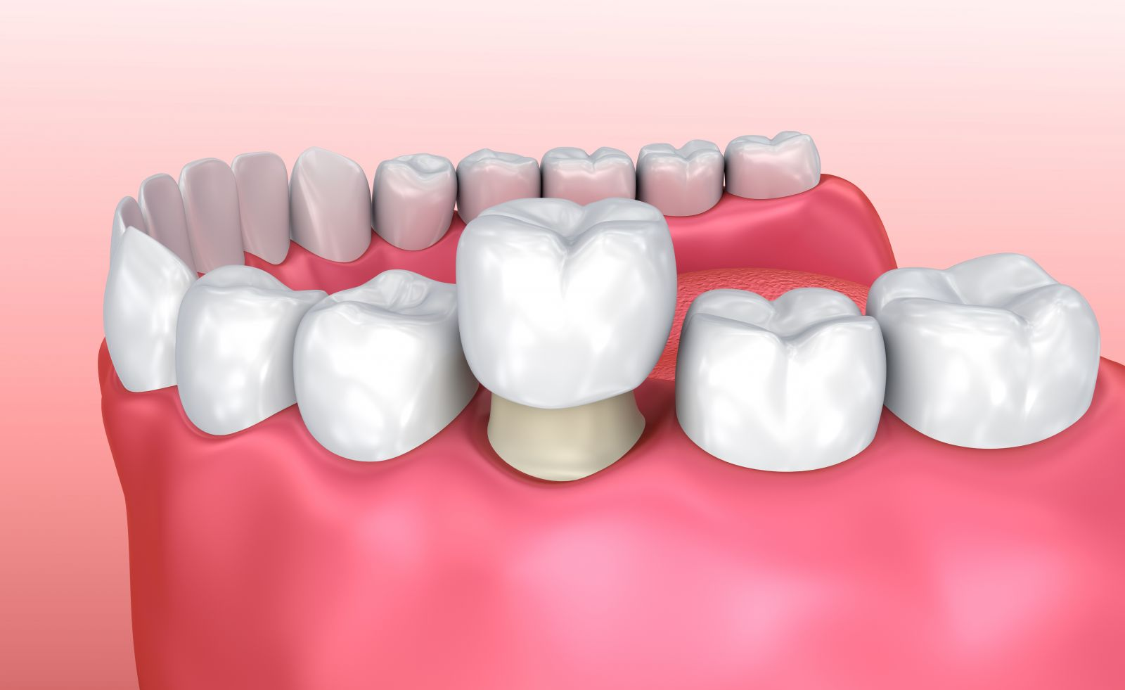 What Is A Dental Crown Dentist In Frederick Md